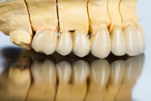 Horní čelist člověka. stomatologie, laboratoř, Hodonín